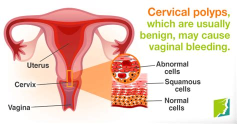 What causes bleeding during or after sex is it normal png 578x303