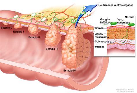 Can sex cause hiatal hernia jpg 3977x2700