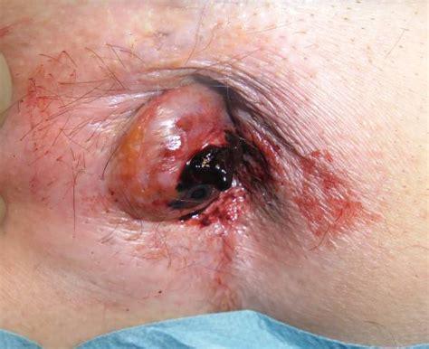 anal hemmroids jpg 600x489